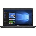 Ноутбук Asus X751NA-TY003T (90NB0EA1-M00850)